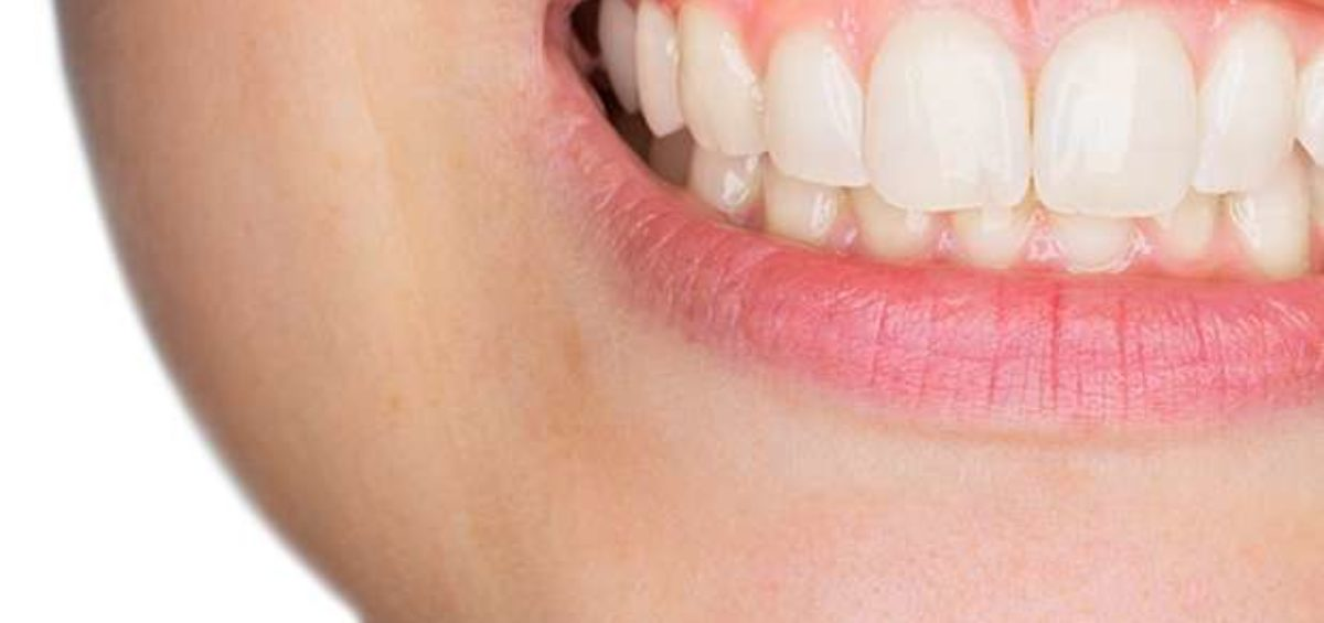 Mouth showing gums